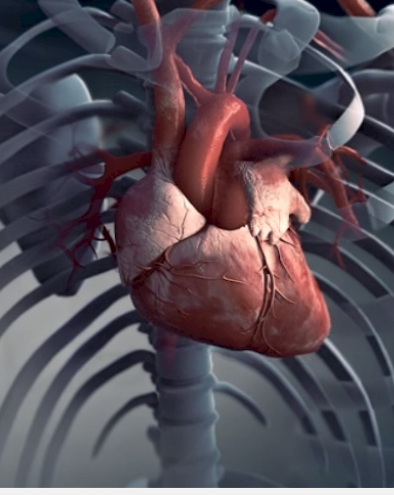Still from the 360 film Heart stroke